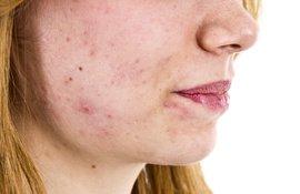Problémás bőr