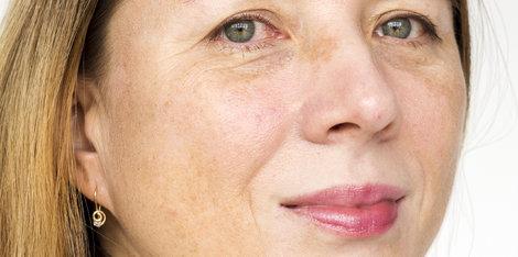 Bőröregedés és hiperpigmentáció? Van megoldás!