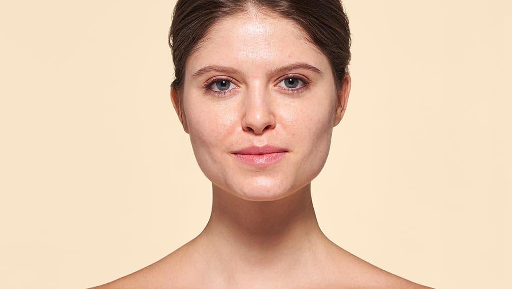 v_before-oily_skin.jpg