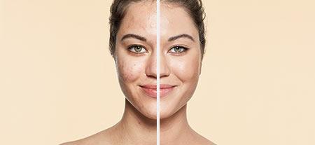 v_before_after-acne.jpg