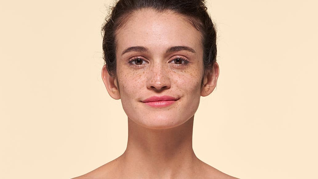 v_before-hyperpigmentation.jpg